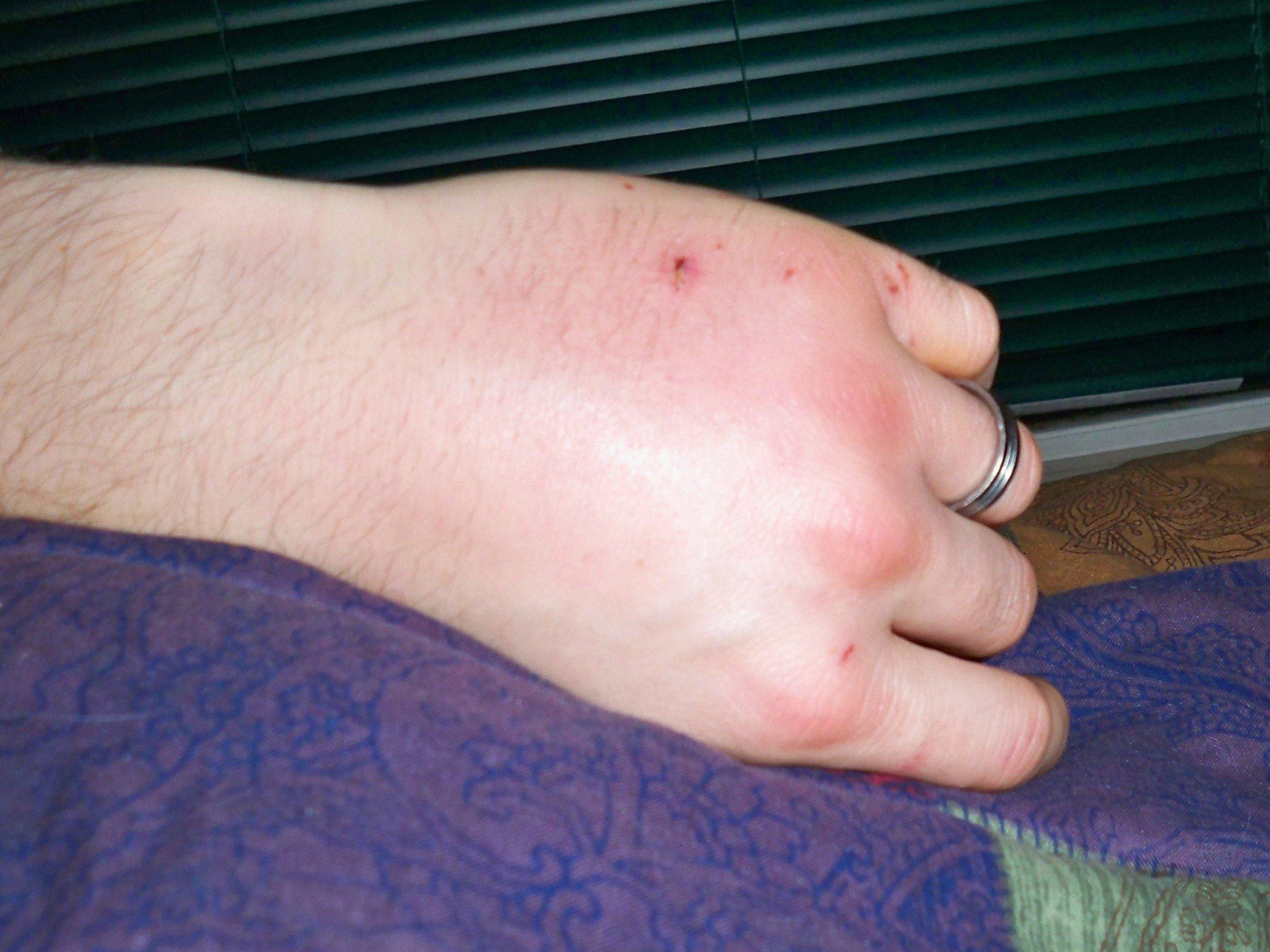 Cat Bite on husband